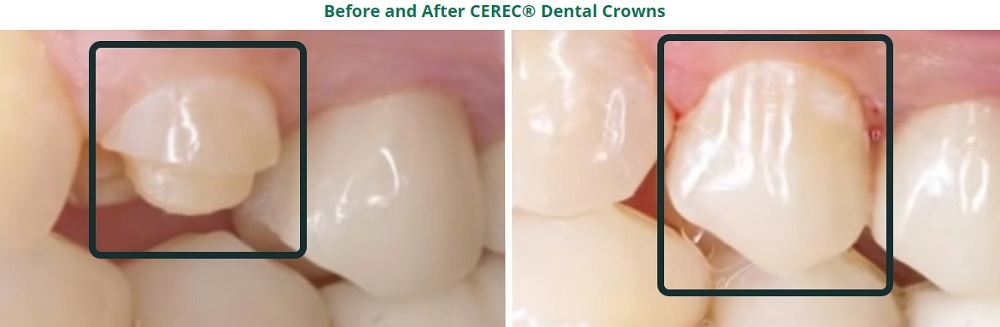 Teeth Before and After CEREC Crown