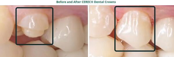 Cerec crowns best dentist in Dousman, Wisconsin